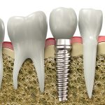 Implante dentário com enxerto ósseo