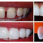 Lentes de Contato Odontológica em Ipatinga
