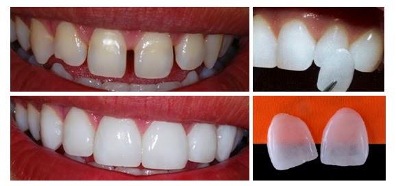 Lente de Contato Dental Preço. Quanto Custa  Quanto Tempo Dura  941c6794cf