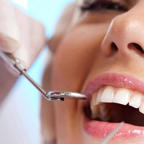 Limpeza Dental, Higienização dos Dentes