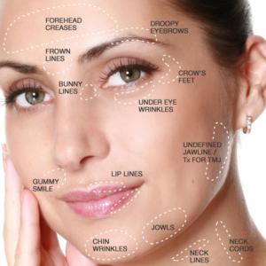 Pontos de aplicação de Botox