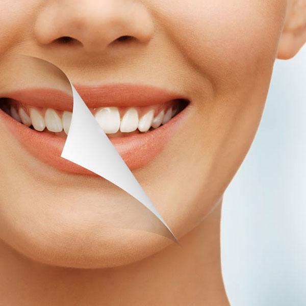 Clareamento Dental Em Ipatinga Mg Consultorio Na Cidade Nobre