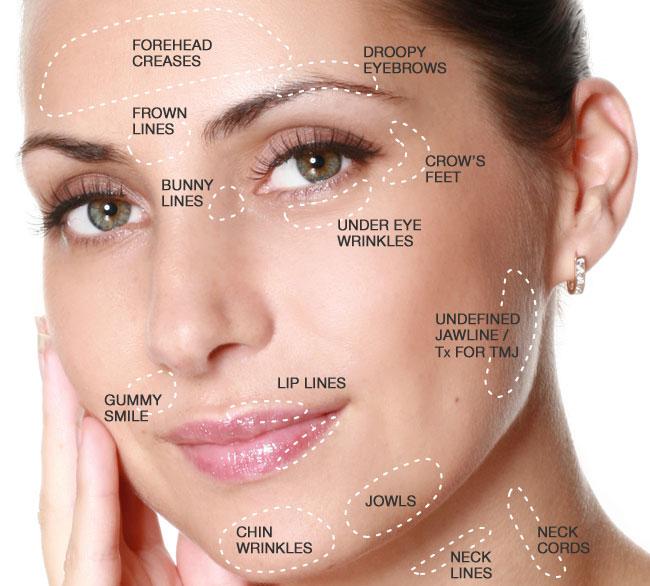 Aplicaçã de Botox, Toxina Botulínica