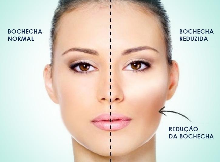 Cirurgia de Bichectomia em Ipatinga