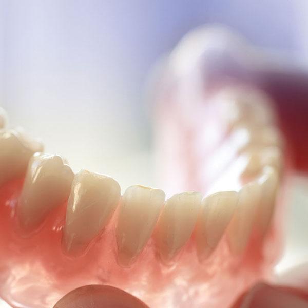 Dentista para fazer Dentadura em Ipatinga