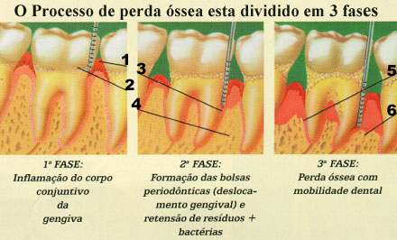 Perda óssea: doença periodontal