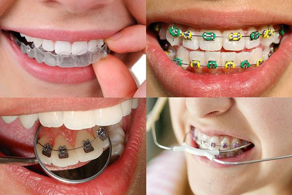 Tipos de aparelho dental