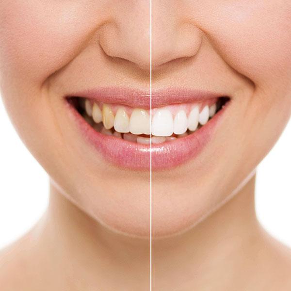 d09cb5518fd7e Lente de Contato Dental. O que é  Preço Valor  Duração  Porcelana
