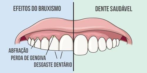 Bruxismo-apertamento-dentario-consequencias-do-bruxismo-como-saber-se-tenho-bruxismo